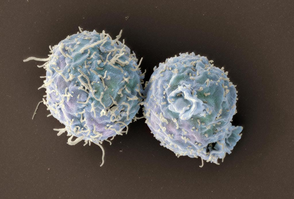 Image: A scanning electron micrograph (SEM) of engineered T-cells lacking coronin 1 (Photo courtesy of the University of Basel).