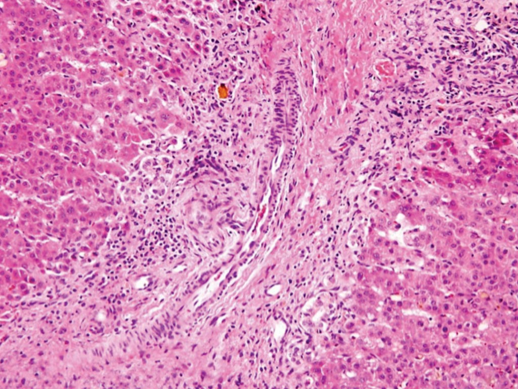 Image: A histopathology of the bile duct of a patient with biliary atresia: loss of bile ducts, brisk ductular reaction, and bile plugs (Photo courtesy of Hopkins GI Pathology).