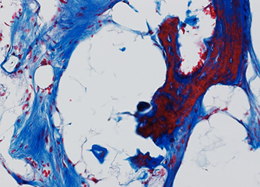 Image: Bone regenerates when two human cell populations (pericytes and adventitial cells) are mixed and implanted in a skull bone defect in immunocompromised mice (Photo courtesy of Yiyun Wang, Johns Hopkins University).