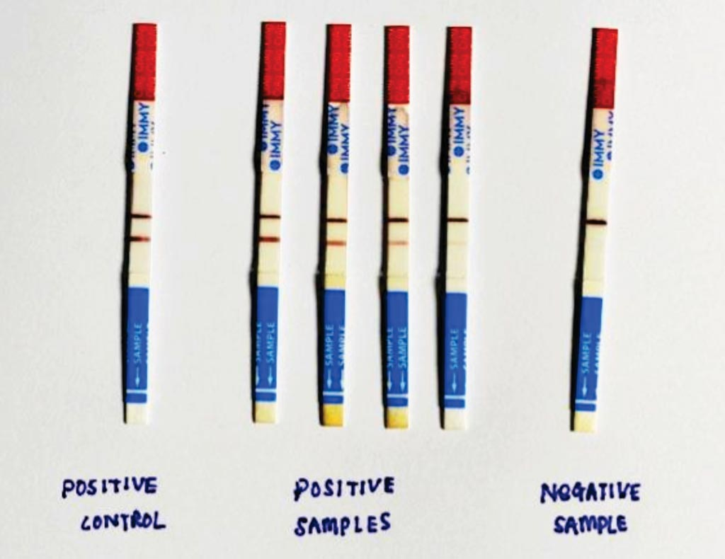 Image: Test strips of IMMY Cryptococcal Antigen Lateral Flow Assay kit (LFA) (Photo courtesy of the Institute for Medical Research, Kuala Lumpur, Malaysia).