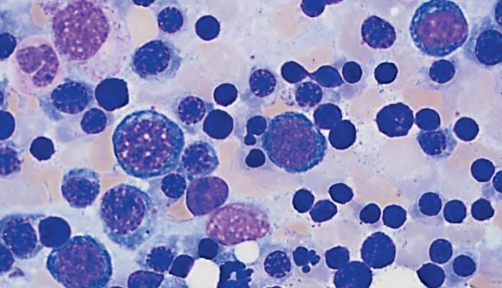 Image: Bone marrow aspirate of a patient with paroxysmal nocturnal hemoglobinuria showing erythroid hyperplasia with occasional nuclear budding consistent with stressed erythropoiesis (Photo courtesy of Katherine Calco).