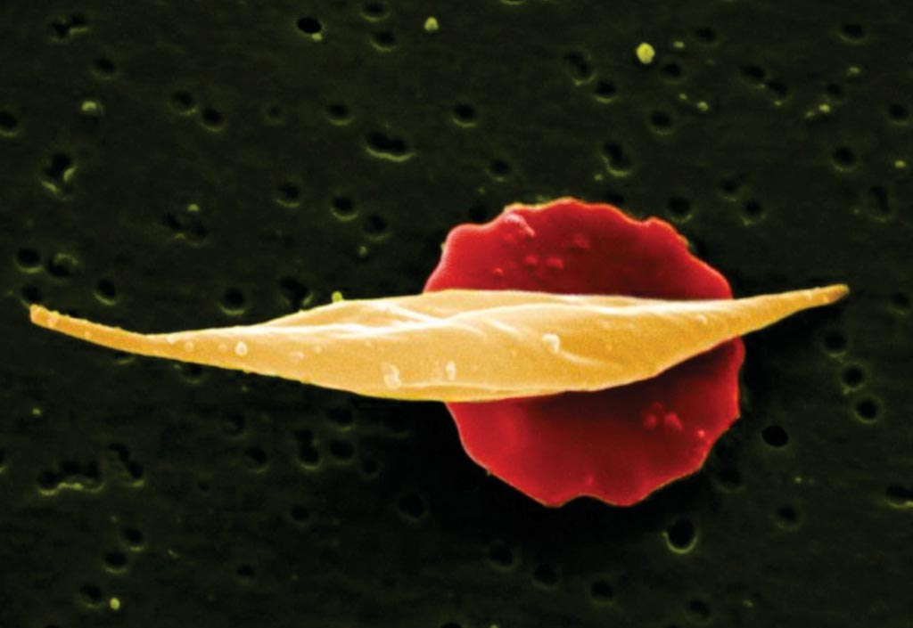 Image: A scanning electron micrograph (SEM) showing long sickle cell in front of more disc-shaped normal red cell (Photo courtesy of the Wellcome Trust).