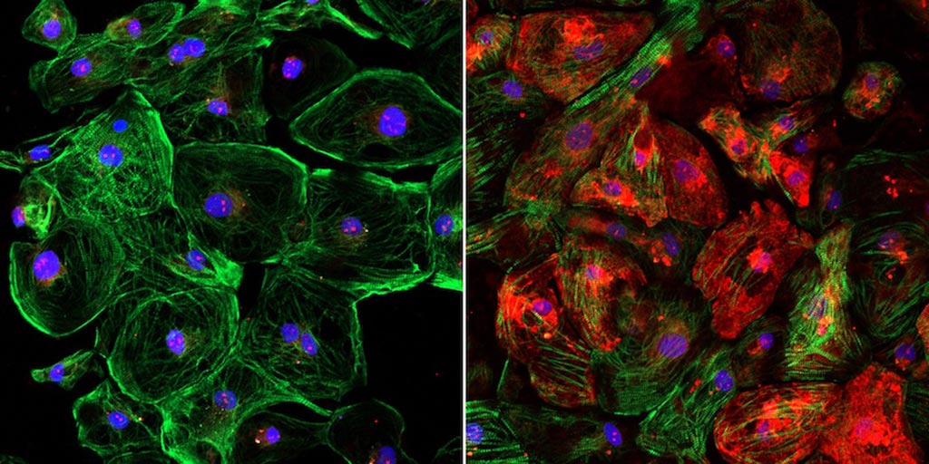 Image: The lack of dystrophin, shown in red, in an unedited human heart muscle cell with DMD (left) and the restoration of dystrophin in a CRISPR-edited human heart muscle cell (right) (Photo courtesy of the University of Texas Southwestern Medical Center).