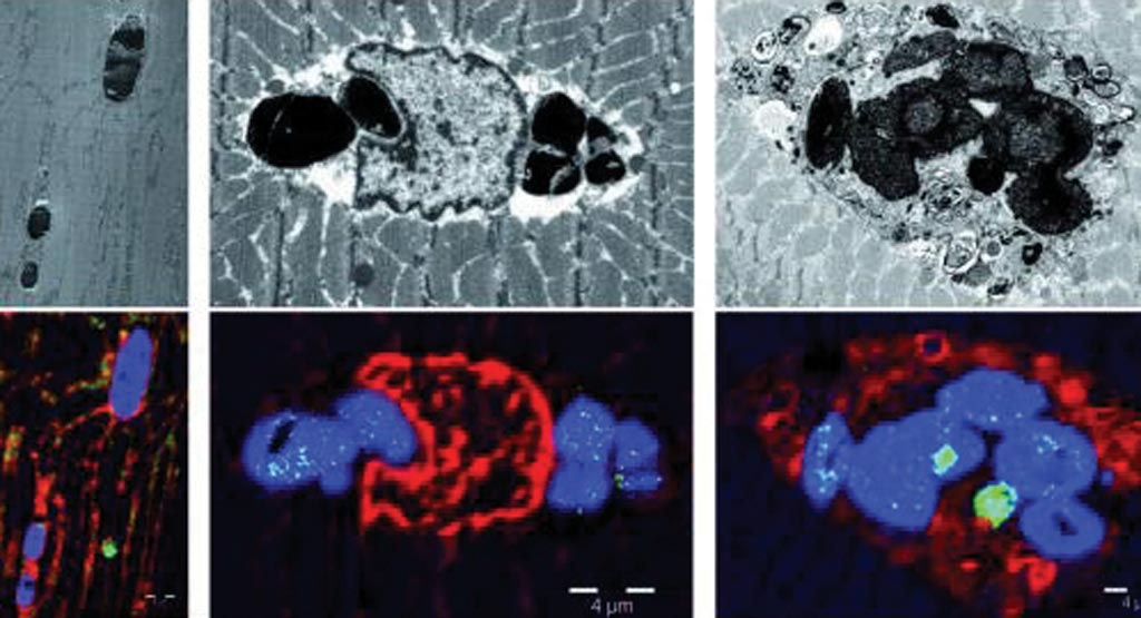 Image: Photomicrographs of tissues from patients with myoglobinopathy, a new muscular disease caused by a mutation in the myoglobin gene (Photo courtesy of Bellvitge Biomedical Research Institute).