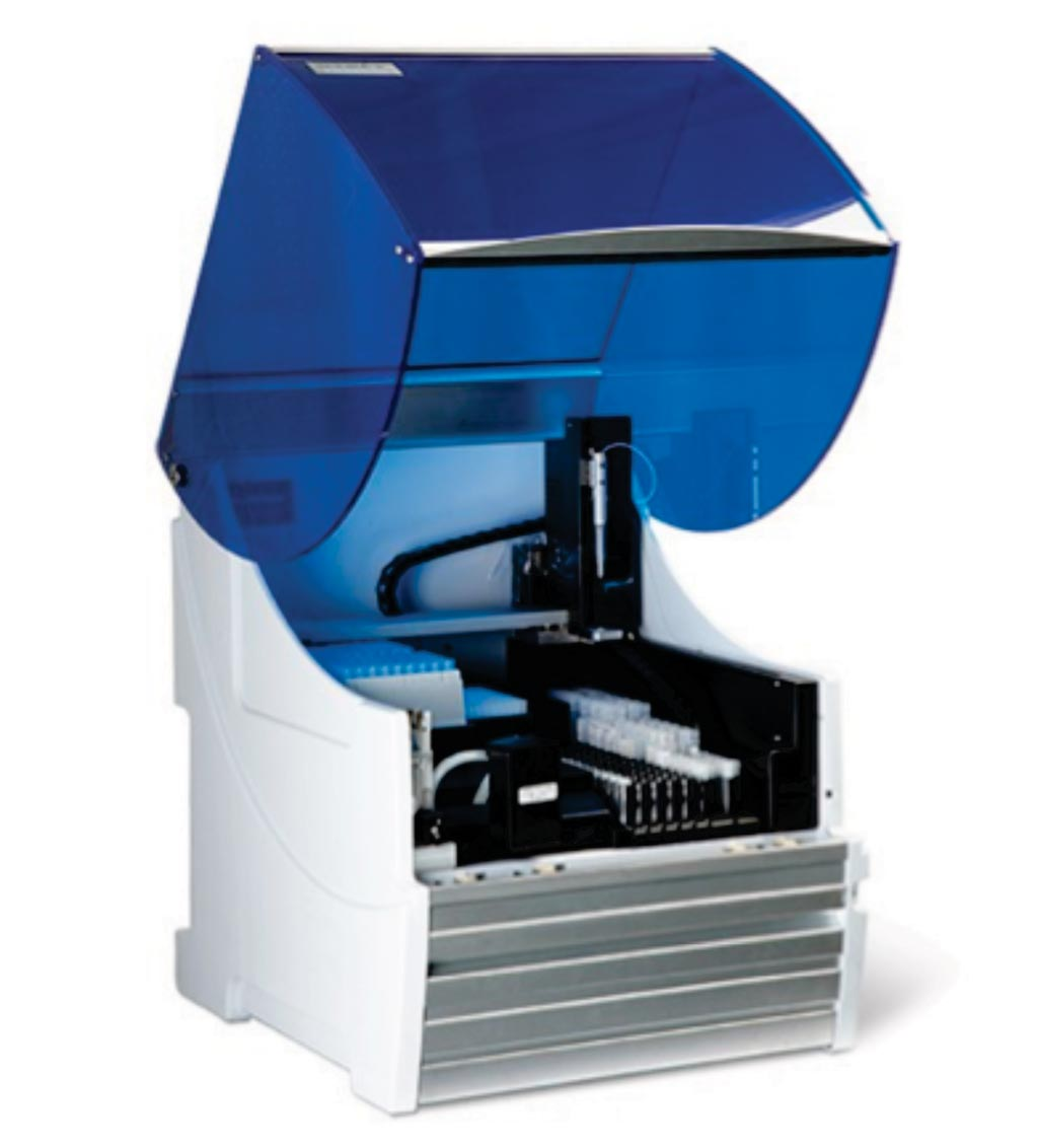 Image: The DS2 ELISA Automation System (Photo courtesy of Dynex Technologies).