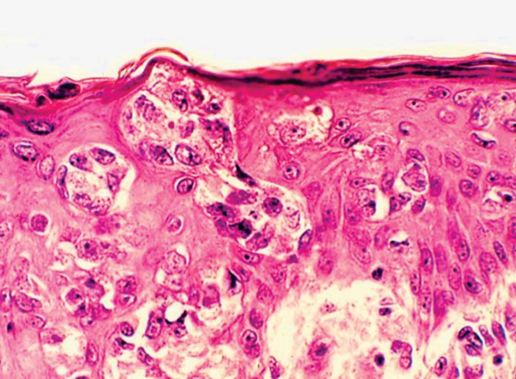 Image: A histopathology of castration-resistant prostate cancer (Photo courtesy of Andrew J. Armstrong, MD, ScM).