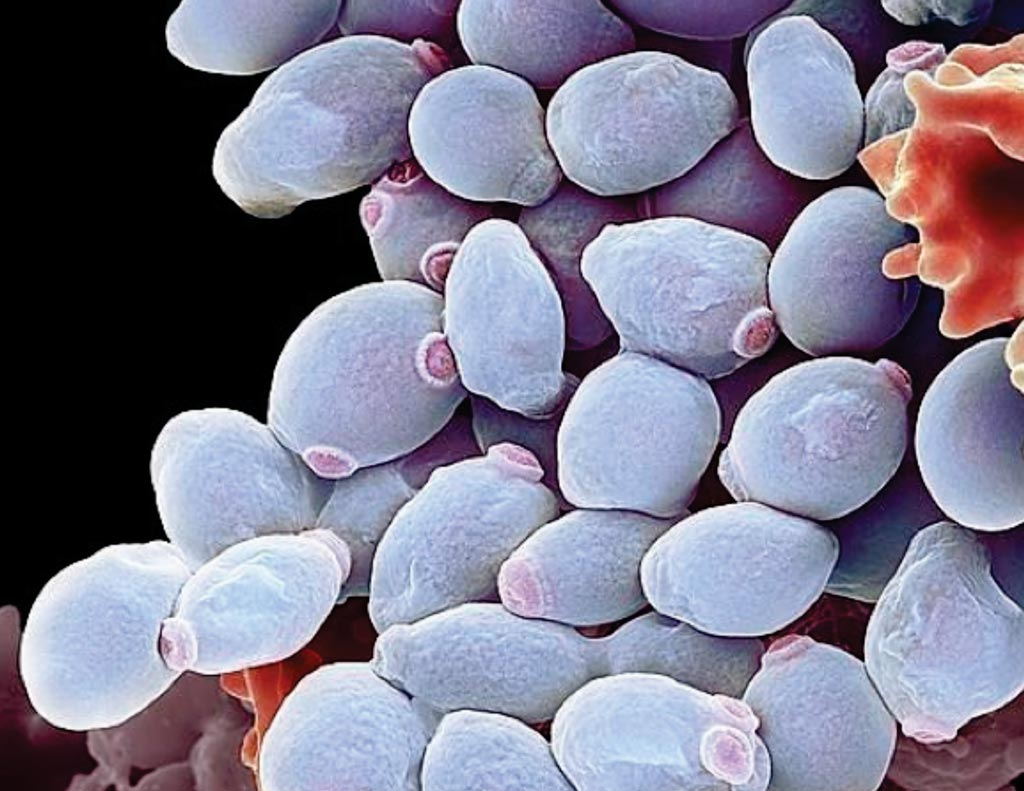 Image: A scanning electron photomicrograph of Candida albicans yeast cells (Photo courtesy of Science Photo Library).