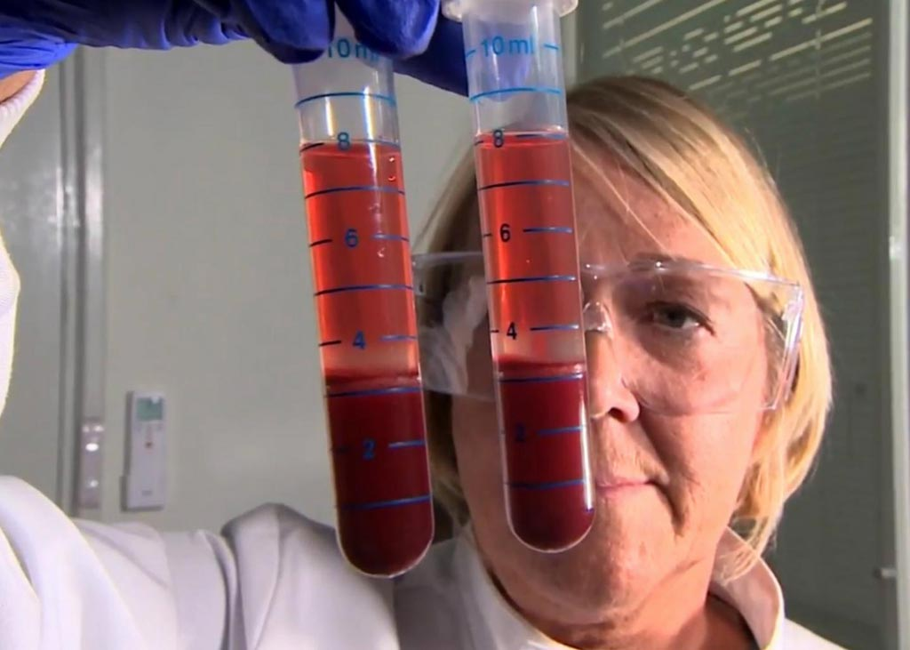 Image: A researcher preparing blood samples for Actiphage testing (Photo courtesy of the University of Nottingham, School of Bioscience).