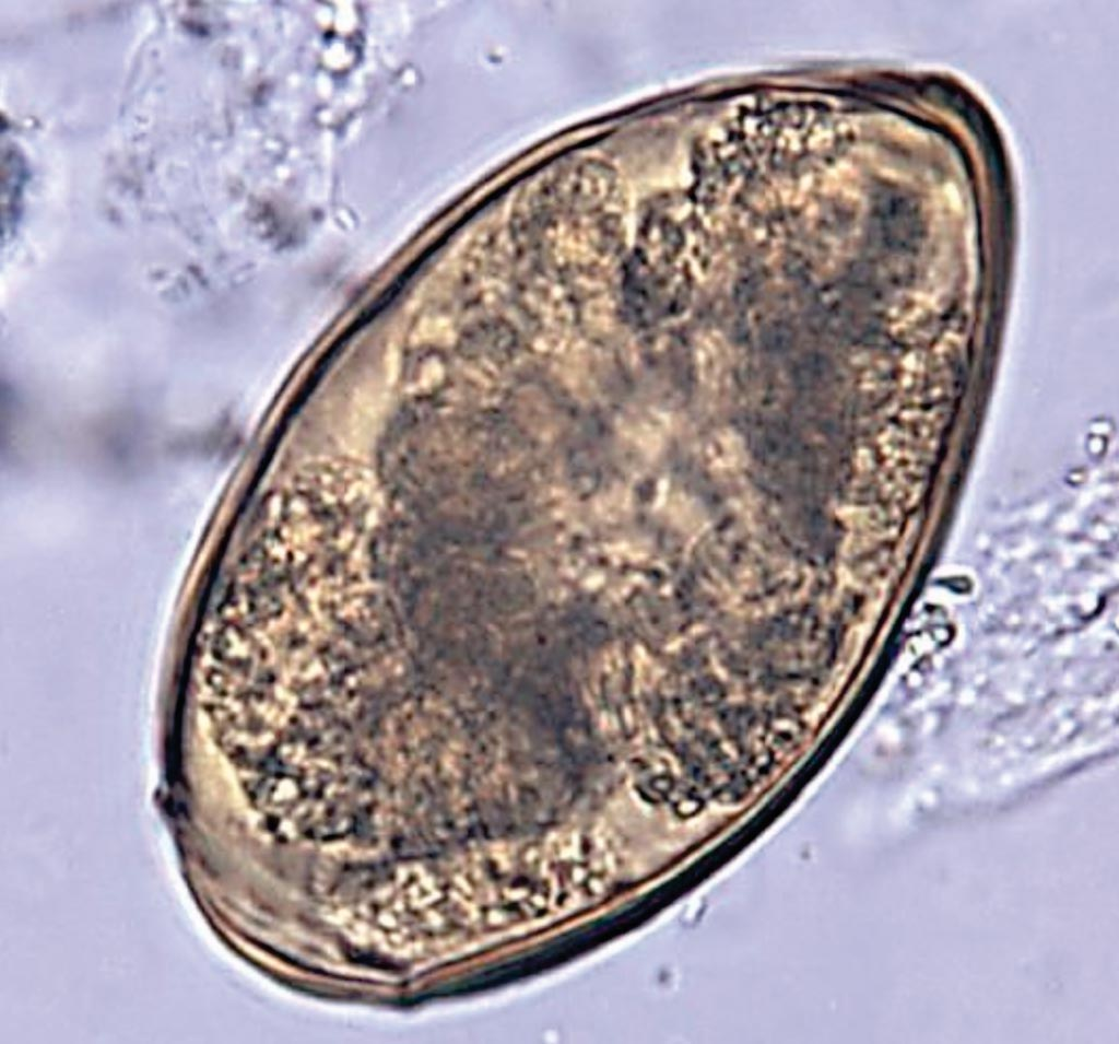 Image: A photomicrograph of an unstained, formalin preserved stool specimen mount, revealed the presence of a Paragonimus westermani trematode egg. Human infections of this lung fluke are most common in eastern Asia and in South America (Photo courtesy of the CDC).