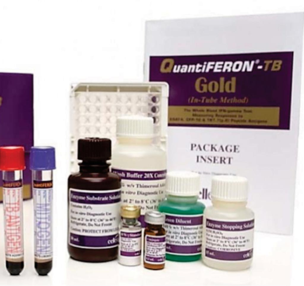 Image: QuantiFERON-TB Gold (QFT) is an innovative blood test that measures the cell-mediated immune response of Mycobacterium tuberculosis infected individuals (Photo courtesy of Qiagen).
