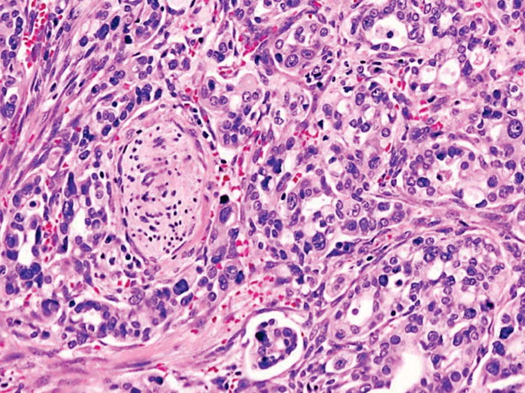 Image: A histopathology of pancreatic ductal adenocarcinoma, the most common type of pancreatic cancer, arising in the pancreas head region (Photo courtesy of KGH).