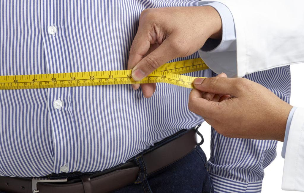 Image: Men who are obese may be at increased risk for developing hypoandrogenemia or low free testosterone, especially if they have more severe obesity (Photo courtesy of iStock).