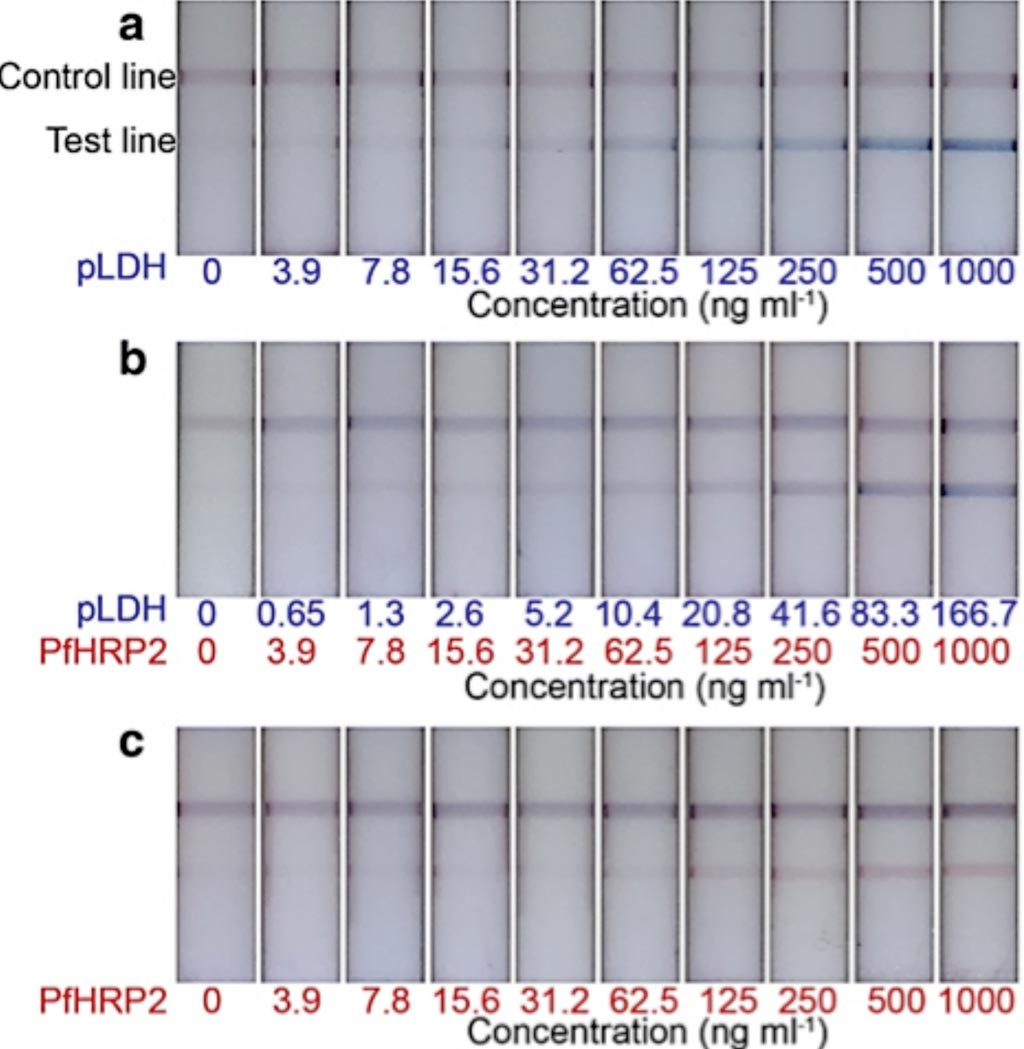 Image: Representative test strips of the two-color LFA. Distinct colors were observed at the test lines, corresponding to a type of antigen, such as a blue test lines for pLDH detection only (Photo courtesy of Cornell University).