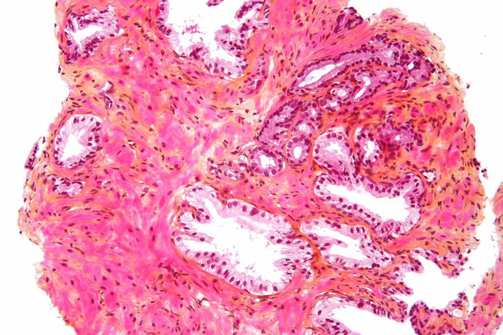 Image: Micrograph of a prostate biopsy showing normal prostatic glands and glands of prostate cancer (prostatic adenocarcinoma) (Photo courtesy of Wikimedia Commons).