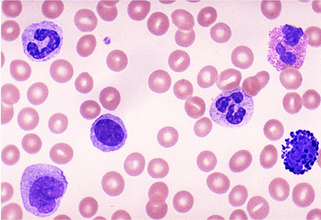 Image: A blood film showing neutrophils and lymphocytes and other white and red blood cells, and a platelet (Photo courtesy of University of Minnesota).