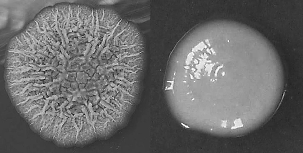 Image: Growth characteristics of rough and smooth phenotypes of Mycobacterium abscessus on 7H11 agar cultured at 37 °C: representative single rough (left) and smooth (right) colonies (Photo courtesy of Hannover Medical School)