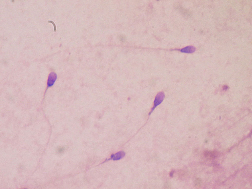 Image: Human sperm stained for semen quality testing in the clinical laboratory (Photo courtesy of Wikimedia Commons)