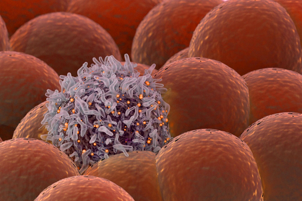 Image: A cancer cell amongst normal cells. A new biomarker, plectin, has been discovered in cancer stem cells that governs cancer survival and spread (Photo courtesy of Laurie Fickman/ University of Houston).