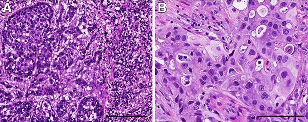 Image: Morphologic variants of triple-negative breast cancer (TNBC) with different genetic alterations. A: TNBC with basal-like histologic features containing a prominent stromal lymphocytic infiltrate; this tumor had MYC amplification. B: TNBC with apocrine differentiation and a PI3KCA mutation. The tumor cells have abundant eosinophilic cytoplasm, round nuclei, and prominent nucleoli (Photo courtesy of Geisel School of Medicine).