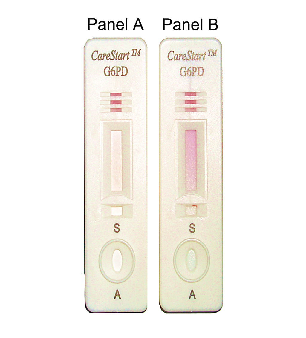 Image: Design of the CareStart G6PD deficiency screening test and interpretation of the results:  Panel A, no color change for sample with deficient G6PD enzymatic activity; Panel B, distinct purple color for sample with normal G6PD enzymatic activity (Photo courtesy of Charles Darwin University).