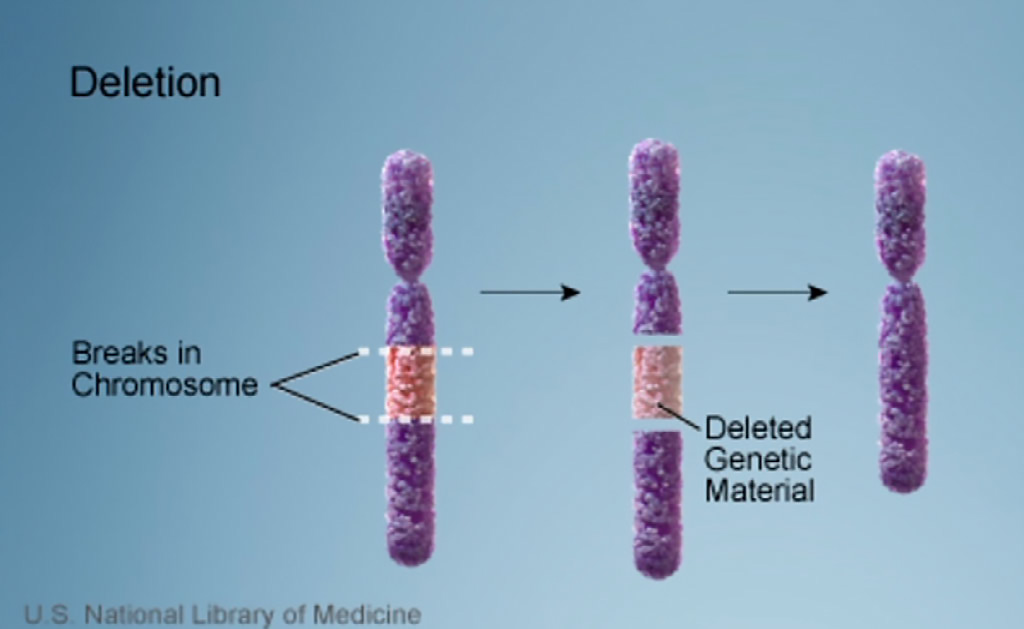 Image: 22q11.2 deletion syndrome is a disorder caused by the deletion of a small piece of chromosome 22. The deletion occurs near the middle of the chromosome at a location designated q11.2 (Photo courtesy of U.S. National Library of Medicine)