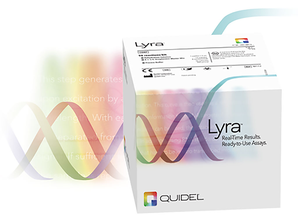 Image: The Lyra SARS-CoV-2 Assay (Photo courtesy of Quidel Corporation)