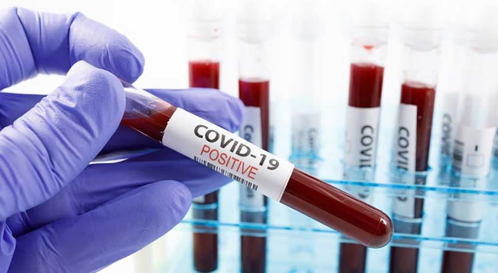 Image: Antibody Detection Is Critical for COVID-19 Diagnosis (Photo courtesy of Minnesota Department of Health).