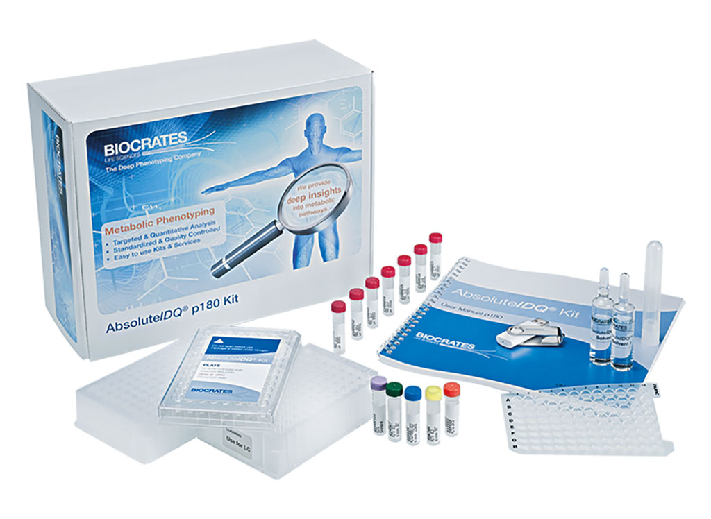 Image: The AbsoluteIDQ p180 kit provides scientists with highly reproducible metabolomics data to confidently obtain detailed knowledge about the metabolic phenotypes in their studies (Photo courtesy of BIOCRATES Life Sciences).