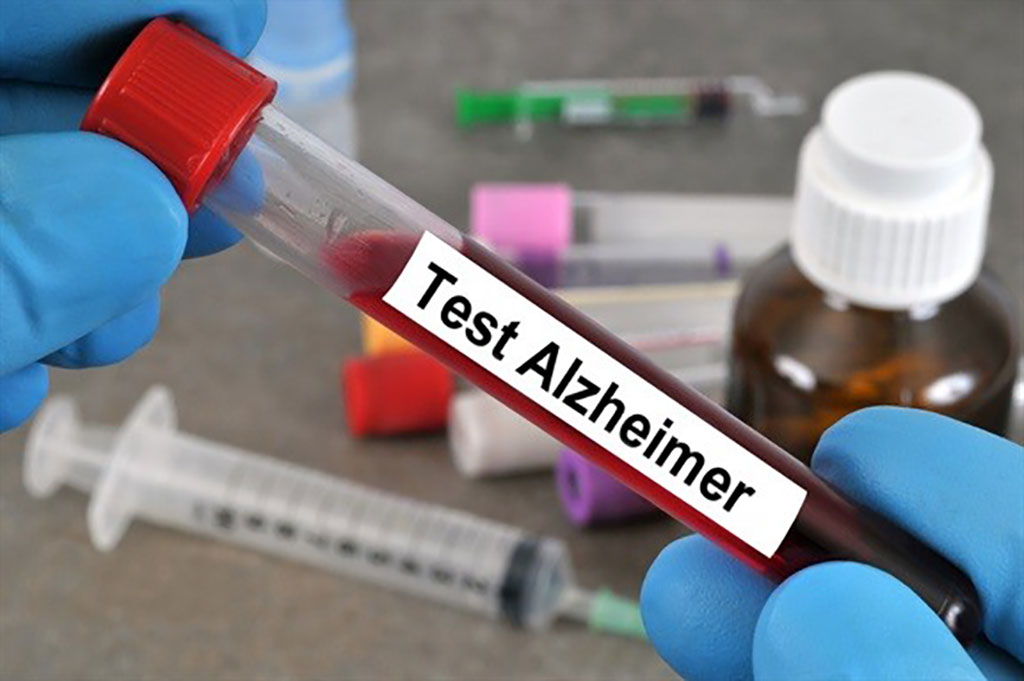 Image: An increase in Plasma P-tau217 may be considered as an early Alzheimer disease biomarker (Photo courtesy of Harvard Medical School).