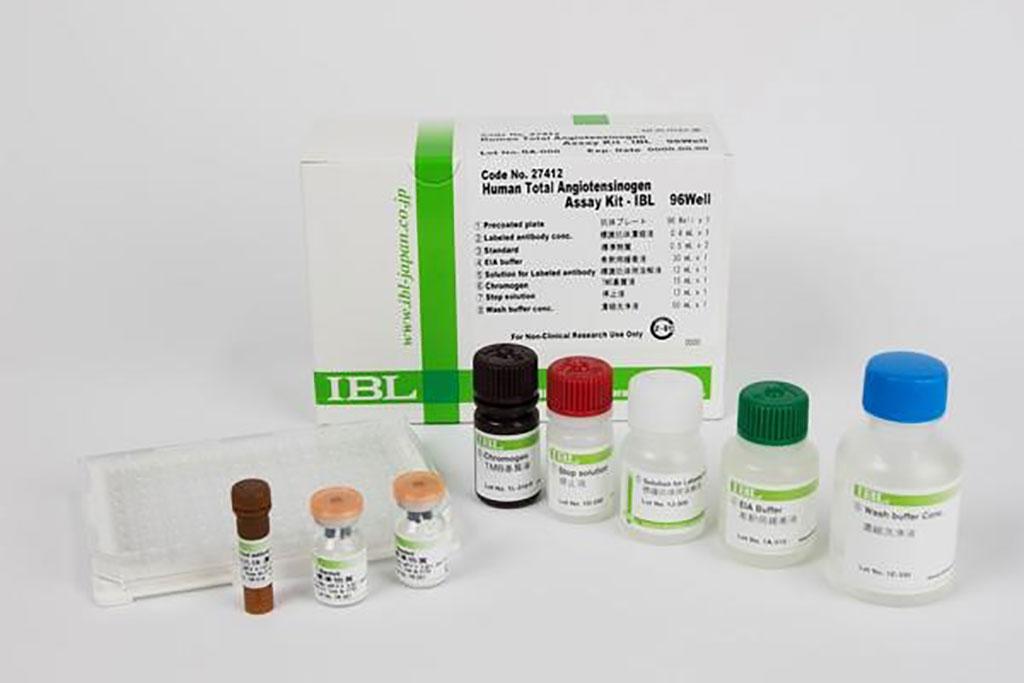 Image: Human Total Angiopoietin ELISA assay (Photo courtesy of Immuno-biological laboratories Co).