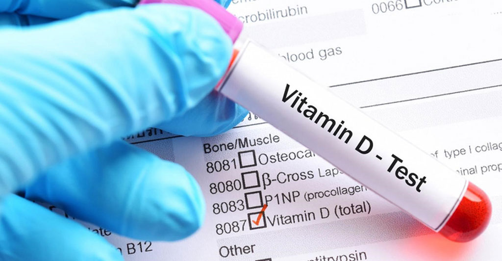 Image: A blood test for Vitamin D showed that African-Americans individuals with low Vitamin D were more at risk from COVID-19 (Photo courtesy of Getty Images)