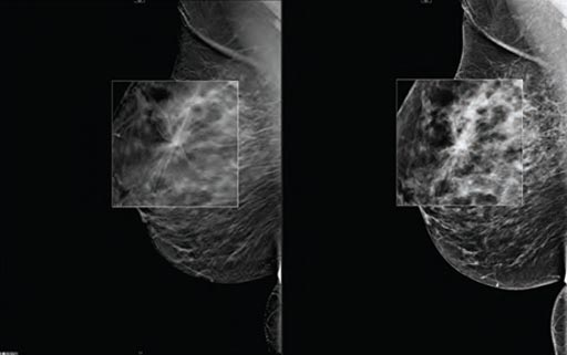 Image: A new study shows digital breast tomosynthesis reduces cancer surgery re-excision rates (Photo courtesy of Carestream Health).
