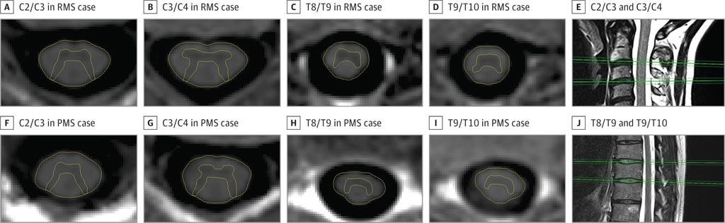 Image: Inversion recovery images illustrating gray matter atrophy in MS (Photo courtesy of Regina Schlaeger).