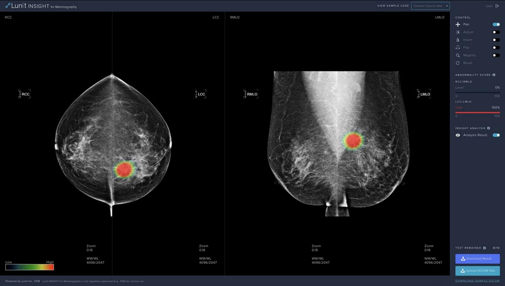 Image: The Lunit INSIGHT for Mammography is expected to increase the cancer detection rate of radiologists by 10% when used as a second reader (Photo courtesy of Lunit).