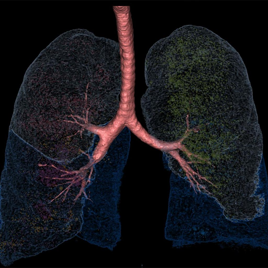 Image: LungPrint Discovery is designed as an artificial intelligence (AI)-powered lung analysis solution for radiologists (Photo courtesy of VIDA Diagnostics).