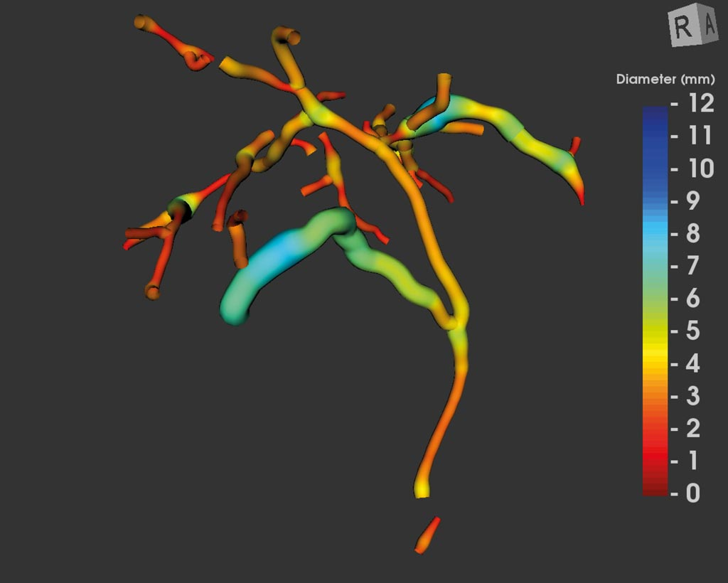 Image: MRCP+ imaging of the biliary tree (Photo courtesy of Perspectum Diagnostics).