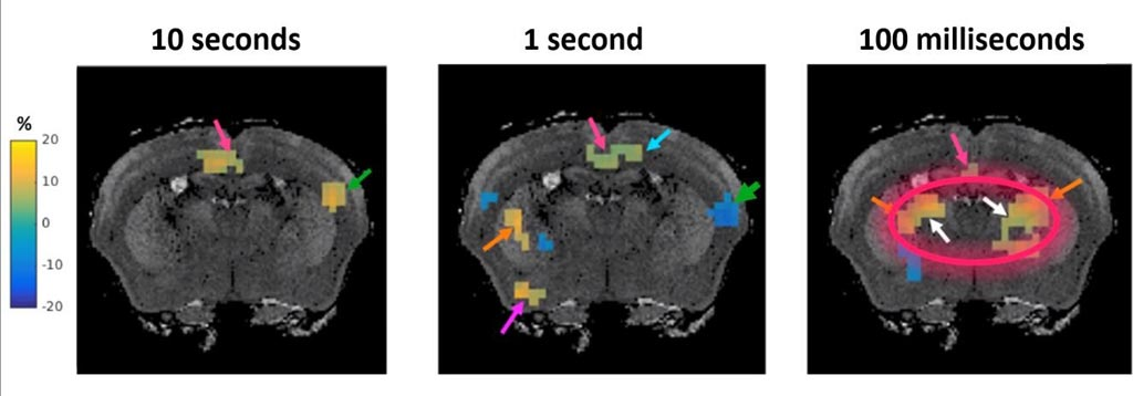 Image: Magnetic resonance elastography (MRE) can show millisecond brain activity (Photo courtesy of Science Advances).