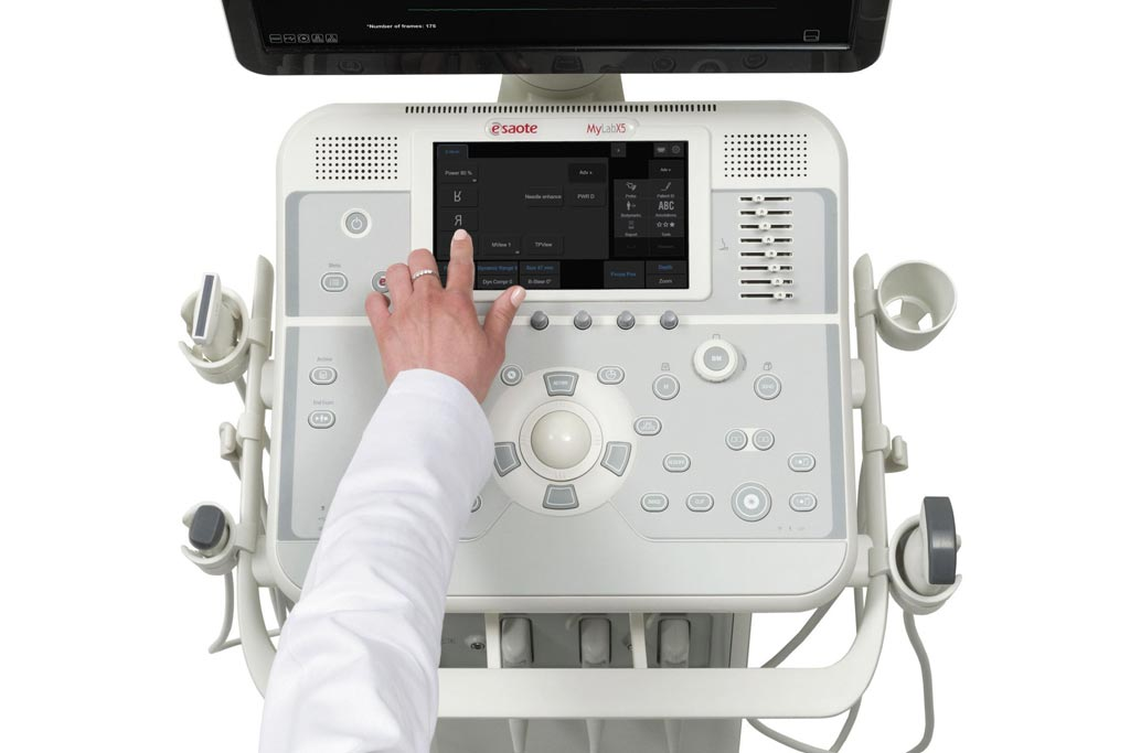 Image: The MyLab X5 ultrasound system (Photo courtesy of Esaote).