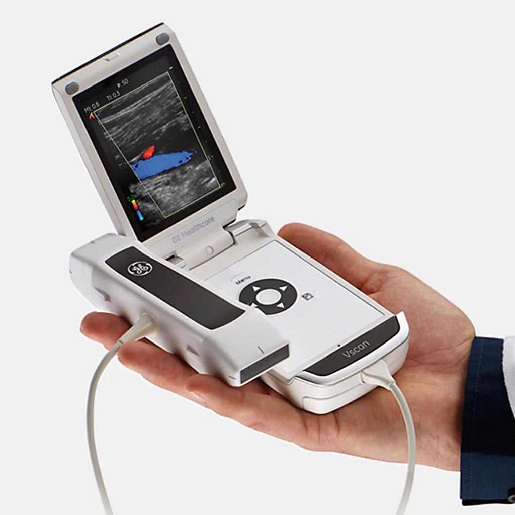 Image: The Vscan portable handheld ultrasound (Photo courtesy of GE Healthcare).