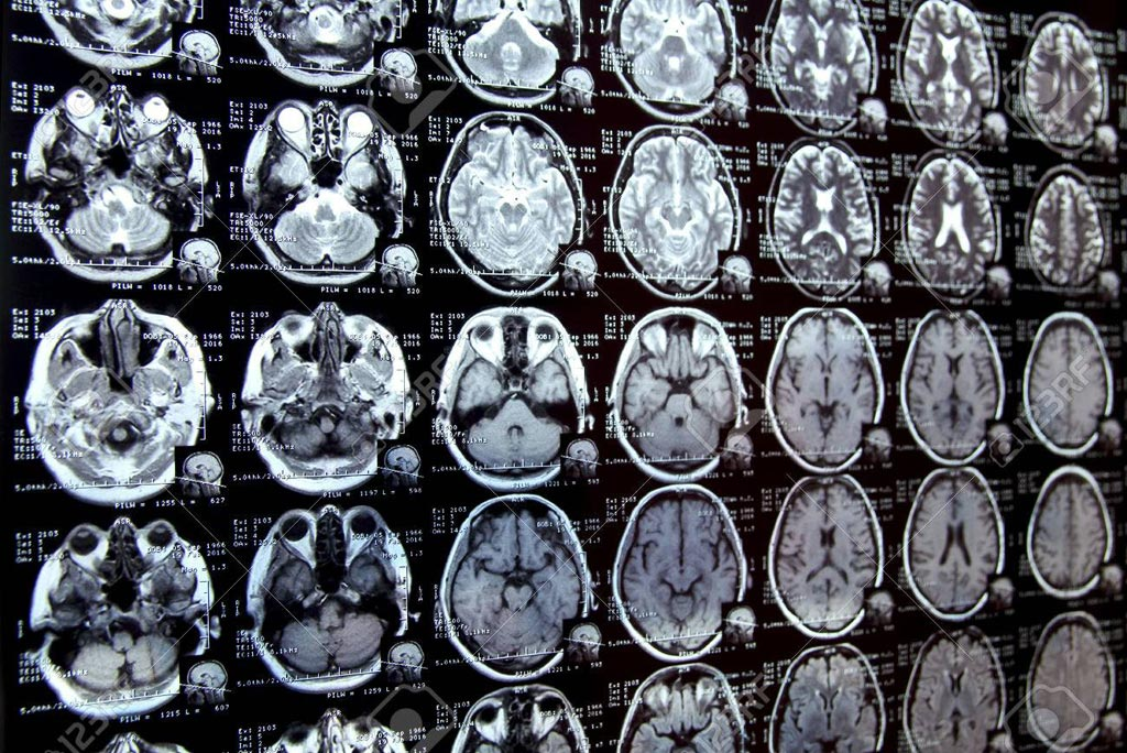 Image: ZTE MRI shows results similar to CT scanning (Photo courtesy of 123rf).