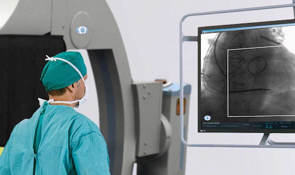 Image: A radiation exposure reduction system that uses AI (Photo courtesy of Omega Medical Imaging).