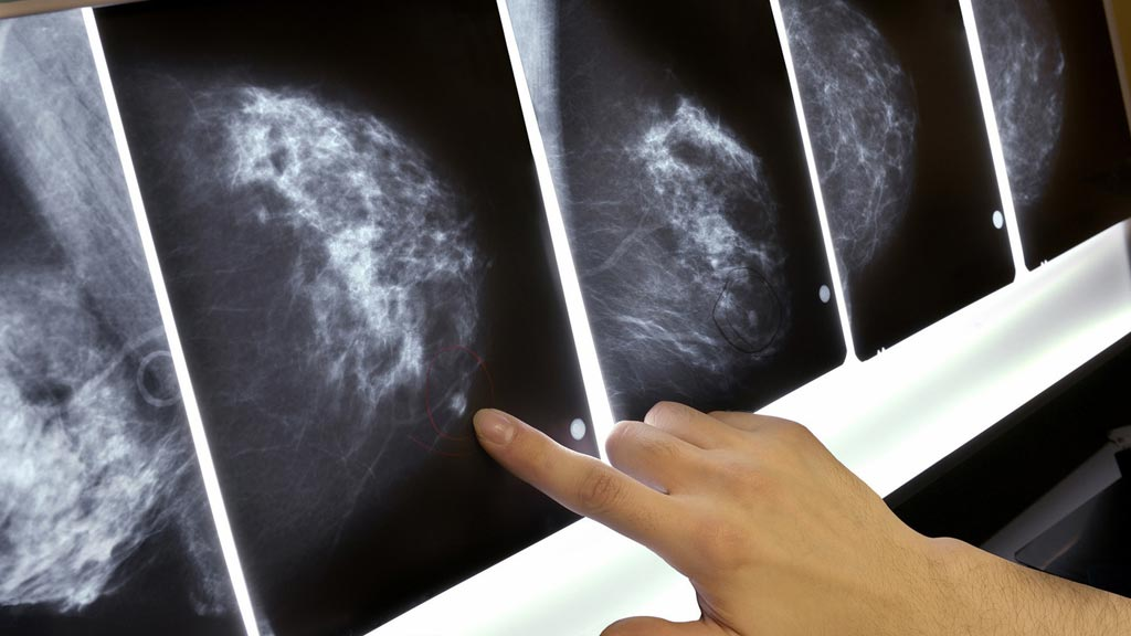 A new study claims that radiologists can discern breast cancer years before clinical lesions (Photo courtesy of Getty Images).