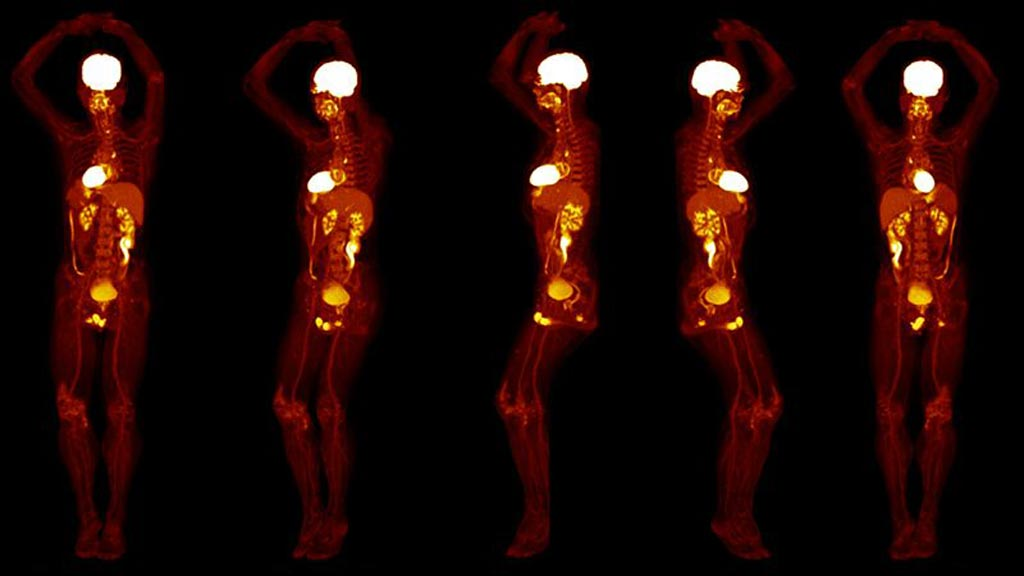 Image: Whole-body PET scans can now be done in 20 seconds (Photo courtesy of UCD).