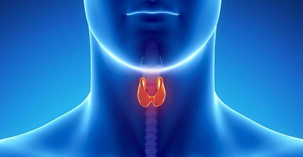 Image: A new study claims radioactive iodine for hyperthyroidism increases cancer risk (Photo courtesy of iStockPhoto).
