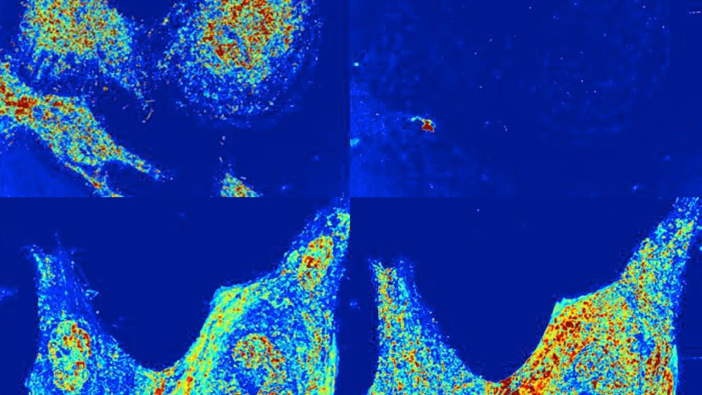 Image: Nanoscale structure alterations of live cells observed using PWS optical microscopy (Photo courtesy of Vadim Backman/ NU).