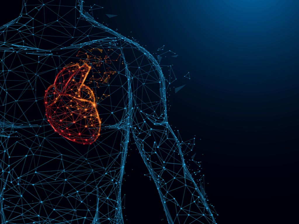 Image: AutocathFFR, a fully automated system, is designed to detect stenoses (narrowing) in the coronary arteries surrounding the heart (Photo courtesy of MedHub).