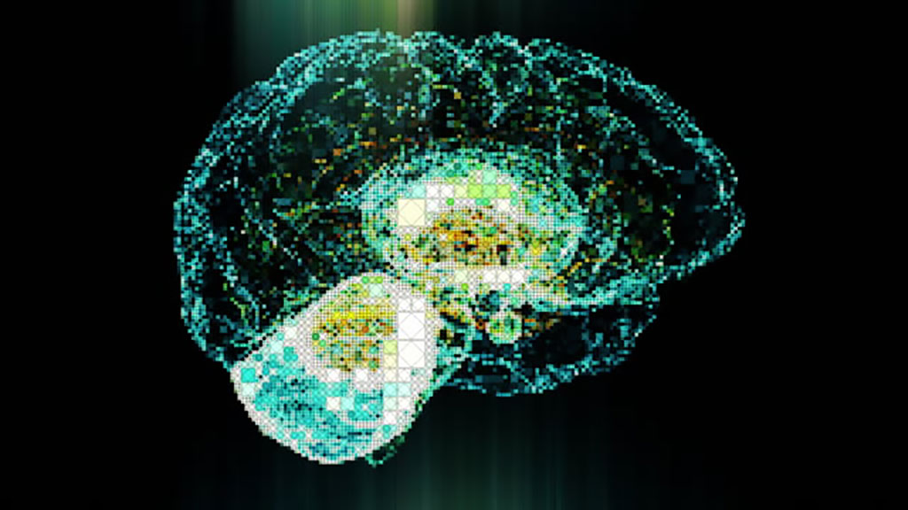 Image: Lithium can help restore cognition after brain irradiation (Photo courtesy of Getty Images)