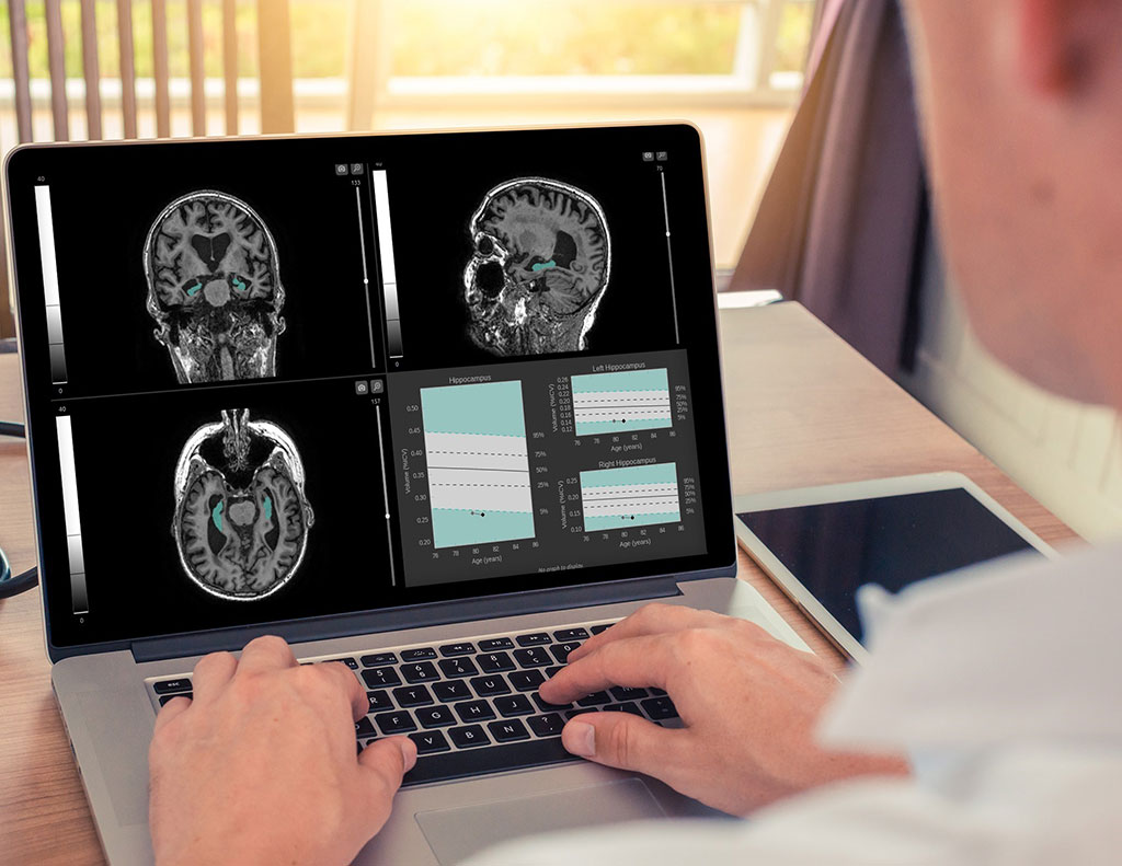 Image: A software platform aids early detection of neurodegenerative diseases (Photo courtesy of Qynapse)