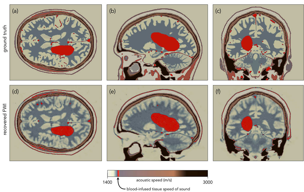 Image: Computer simulated images of FWI detecting a brain hemorrhage (Photo courtesy of Imperial College London)