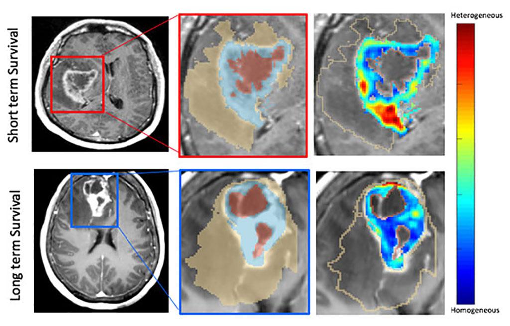 Image: MRI scans showing radiomic prognostic features (Photo curtesy of CWRU)